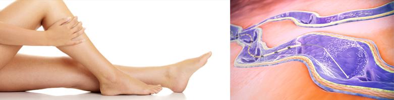 ClariVein® Behandlung von Venen in Mödling